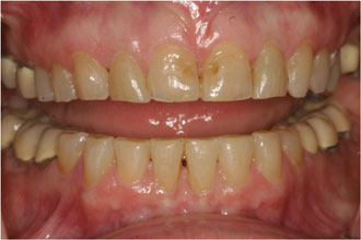 smile gallery before and after dental photos smile makeovers